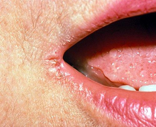 Как лечить трещины на губах у взрослого мужчины