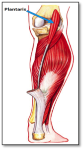 Plantaris muscle rupture