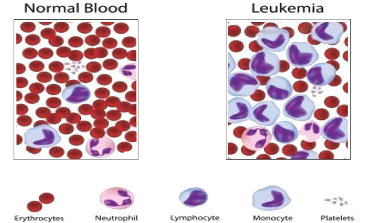 living with leukemia and how the disease affects the life of everyone around Walk around the neighborhood the park  and get expert guidance on living a healthy life  diabetes is a life-long disease that affects the way your body.