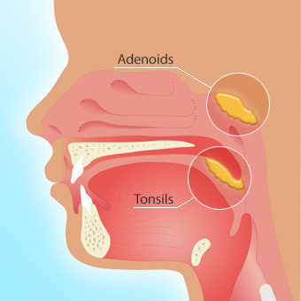 When is it time to remove tonsils in adults